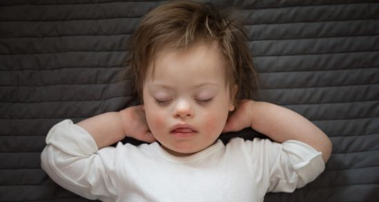 Image of a child with disability, who is sleeping.