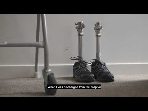 Picture of persons prosthetic legs with shoes on